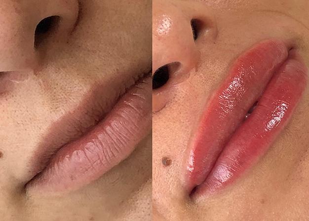 hulya-cagatay-kalici-dudak-renklendirmesi-nedir
